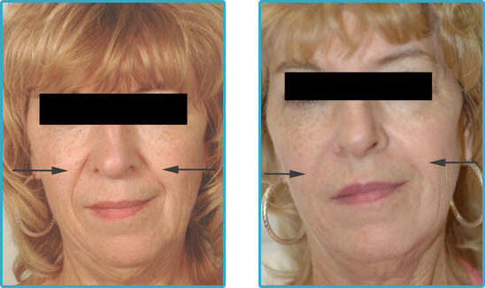 restylane injections