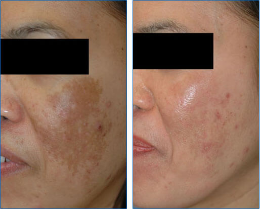 Asian Skin Melasma Laser Treament