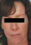 Los Angeles Facial Rejuvenation before and After Pictures