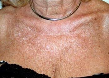 Poikiloderma Discoloration on Neck and Chest