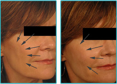 Radiesse for Cheekbone Shaping