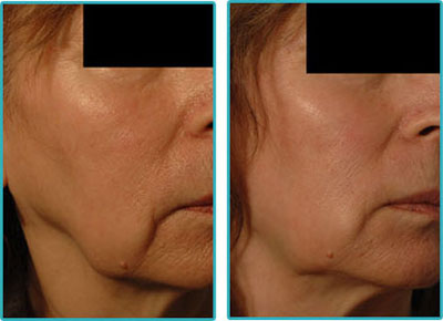 Radiesse Injections for Jowls