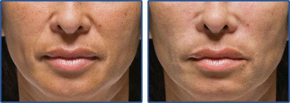 radiesse injections before after pictures