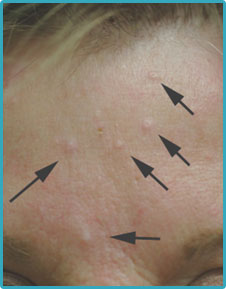 What Is Sebaceous Hyperplasia and How Can It Be Treated?