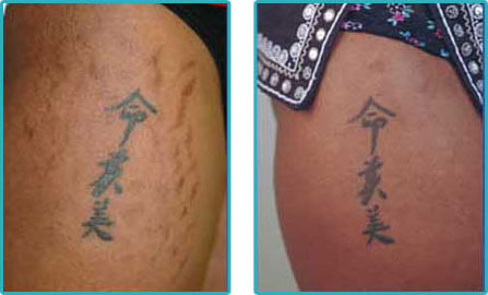 Stretch Marks Laser Removal Before After Pictures