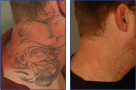 tattoo laser removal before and after photos
