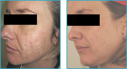 Acne Scar Treatments Before After Photos