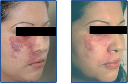Vascular Birthmarks Laser Treatment