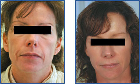 laser wrinkle removal before after photos