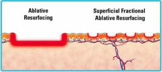 wrinkle laser removal
