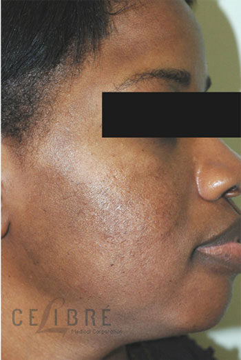 Acne Scar Removal After Picture 1