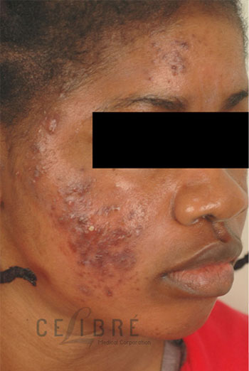 Acne Scar Removal Before Picture 1