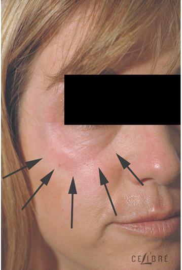 How Fillers Can Help Hide Dark Under Eye Circles