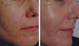Cosmetic Facial Injections Laser Dermatology Botox